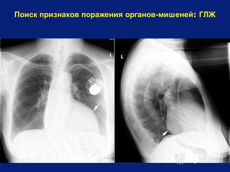 Поиск признаков поражения органов-мишеней : ГЛЖ