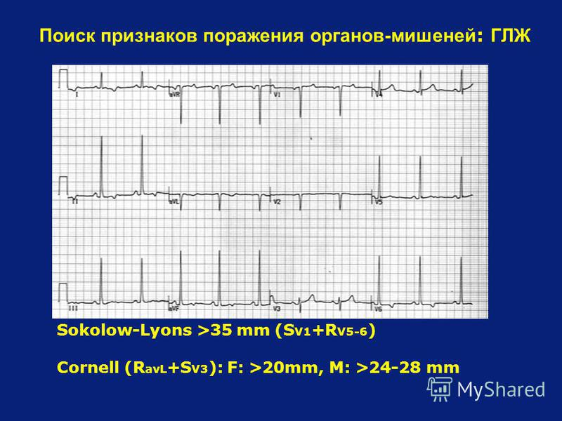 Sokolow-Lyons >35 mm (S V1 +R V5-6 ) Cornell (R avL +S V3 ): F: >20mm, M: >24-28 mm