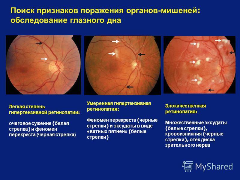 Поиск признаков поражения органов-мишеней : обследование глазного дна Умеренная гипертензивная ретинопатия : Феномен перекреста ( черные стрелки ) и эксудаты в виде «ватных пятнен» ( белые стрелки ) Легкая степень гипертензивной ретинопатии : очагово