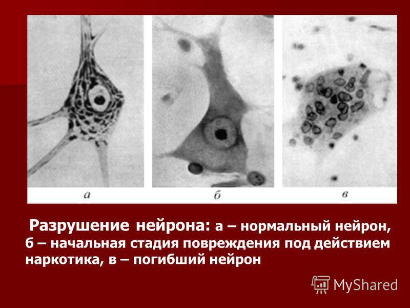 Разрушение нейрона: а – нормальный нейрон, б – начальная стадия повреждения под действием наркотика, в – погибший нейрон