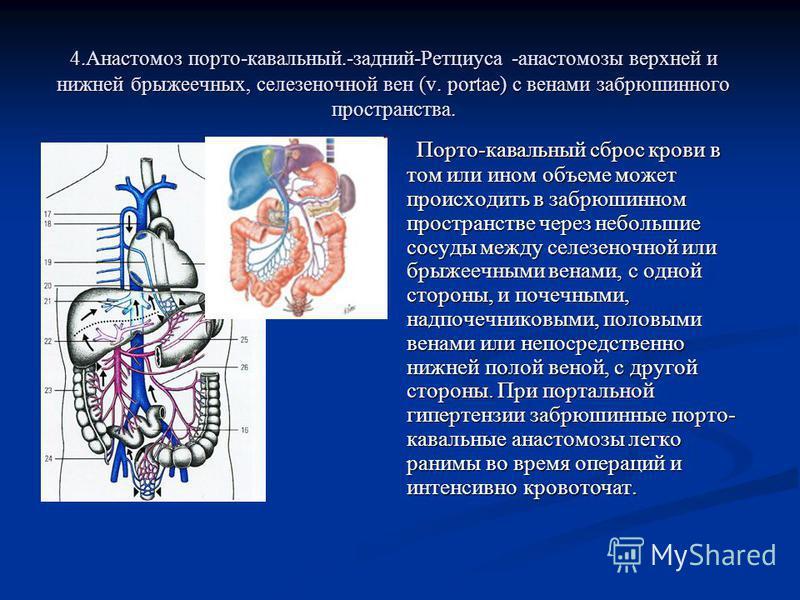 4. Анастомоз порто-кавальный.-задний-Ретциуса -анастомозы верхней и нижней брыжеечных, селезеночной вен (v. portae) с венами забрюшинного пространства. Порто-кавальный сброс крови в том или ином объеме может происходить в забрюшинном пространстве чер