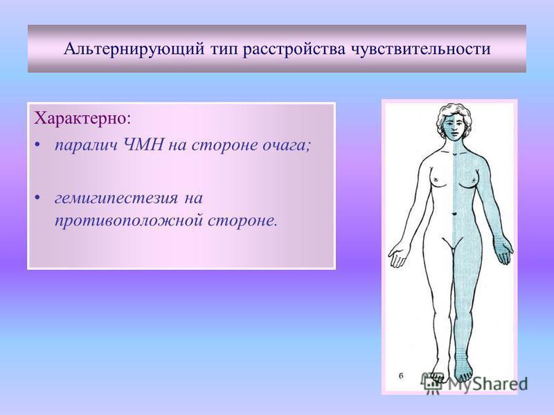 Альтернирующий тип расстройства чувствительности Характерно: паралич ЧМН на стороне очага; гемигипестезия на противоположной стороне.