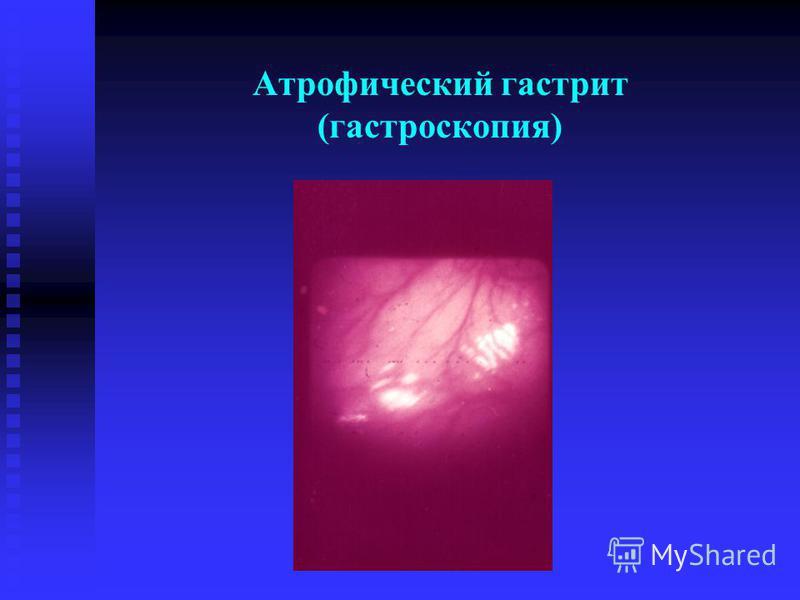 Атрофический гастрит (гастроскопия)