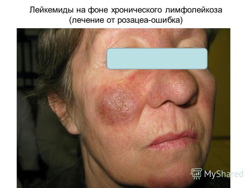 Лейкемиды на фоне хронического лимфолейкоза (лечение от розацеа-ошибка)