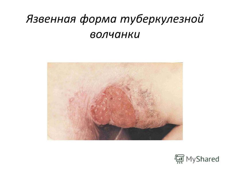 Язвенная форма туберкулезной волчанки