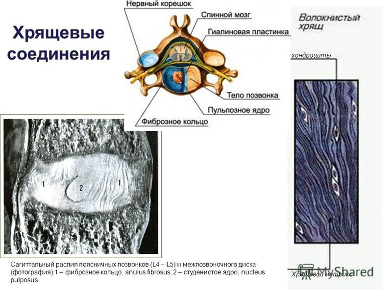 хондроциты Хрящевой матрикс Сагиттальный распил поясничных позвонков (L4 – L5) и межпозвоночного диска (фотография).1 – фиброзное кольцо, anulus fibrosus; 2 – студенистое ядро, nucleus pulposus