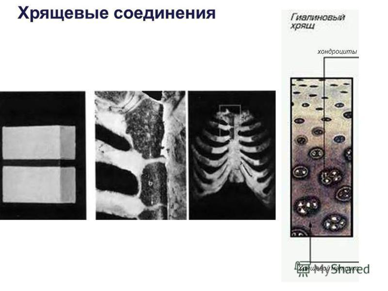 хондроциты Хрящевой матрикс
