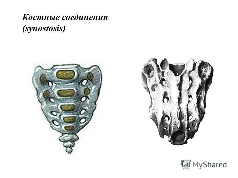 Костные соединения (synostosis)
