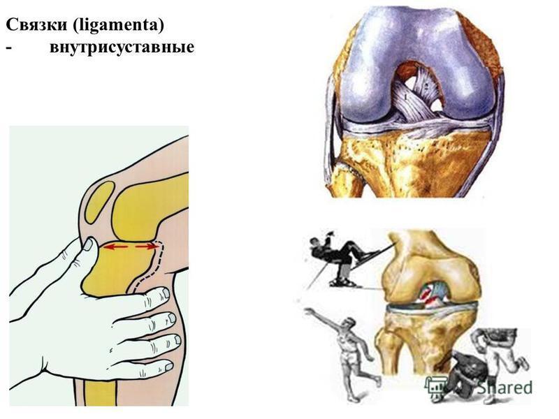 Связки (ligamenta) - внутрисуставные