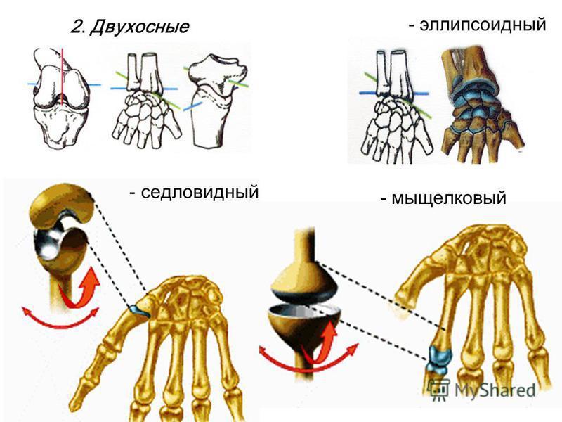 2. Двухосные - эллипсоидный - мыщелковый - седловидный