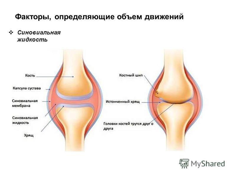 Факторы, определяющие объем движений Синовиальная жидкость