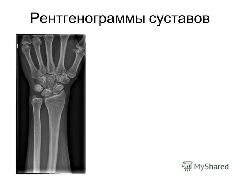 Рентгенограммы суставов