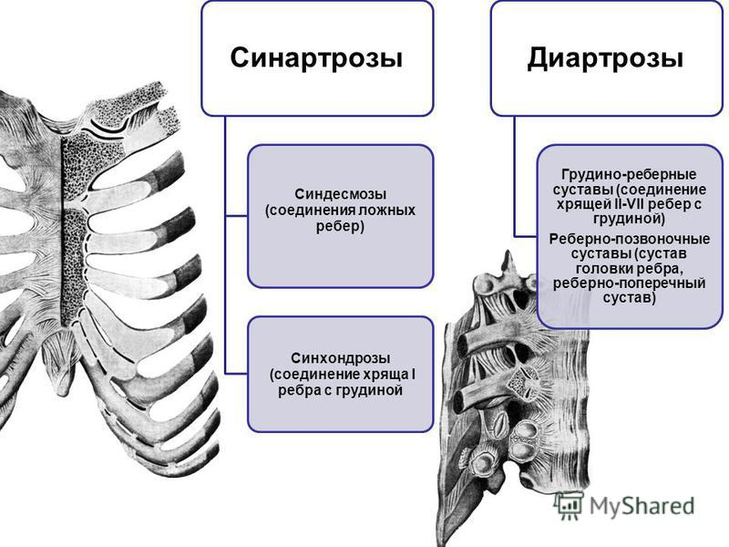 Синартрозы Синдесмозы (соединения ложных ребер) Синхондрозы (соединение хряща I ребра с грудиной Диартрозы Грудино-реберные суставы (соединение хрящей II-VII ребер с грудиной) Реберно-позвоночные суставы (сустав головки ребра, реберно-поперечный суст