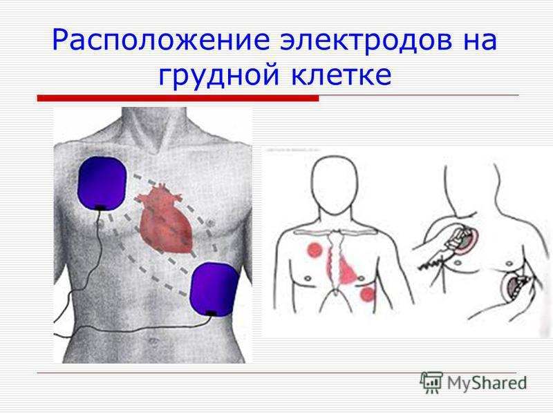 Расположение электродов на грудной клетке