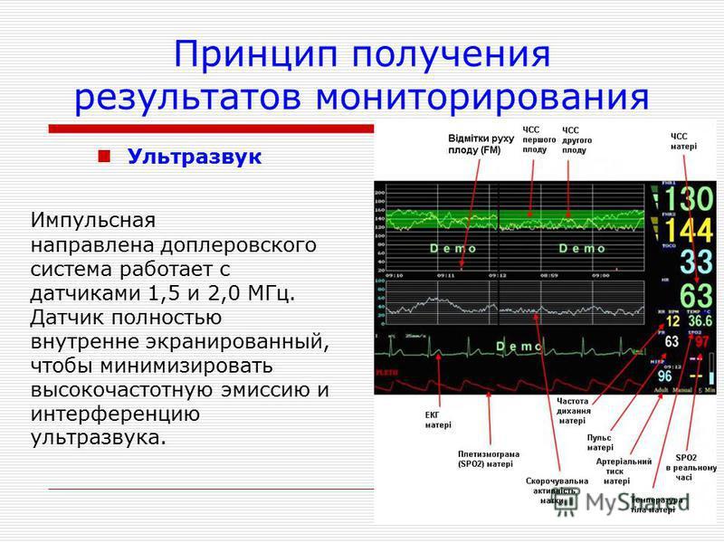 Принцип получения результатов мониторирования Ультразвук Импульсная направлена доплеровского система работает с датчиками 1,5 и 2,0 МГц. Датчик полностью внутренне экранированный, чтобы минимизировать высокочастотную эмиссию и интерференцию ультразву