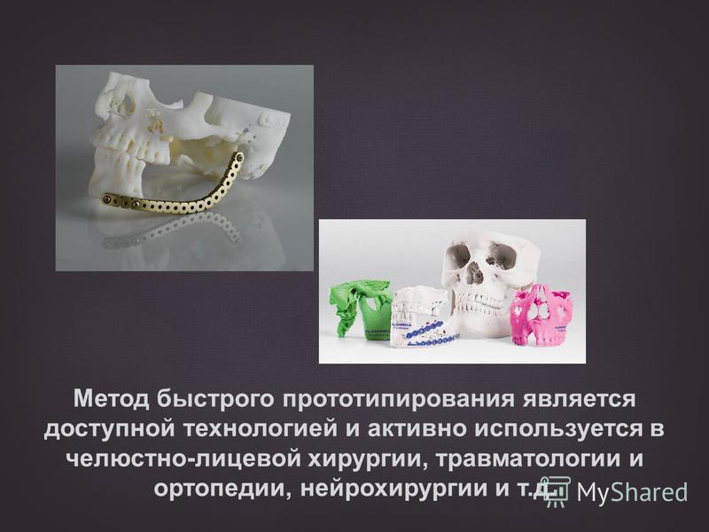 Метод быстрого прототипирования является доступной технологией и активно используется в челюстно-лицевой хирургии, травматологии и ортопедии, нейрохирургии и т.д.