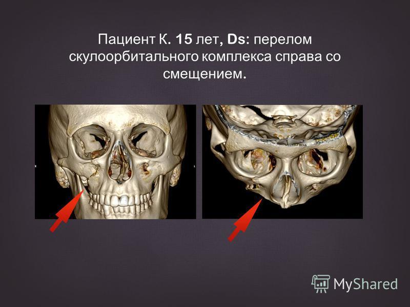 Пациент К. 15 лет, Ds: перелом скулоорбитального комплекса справа со смещением.