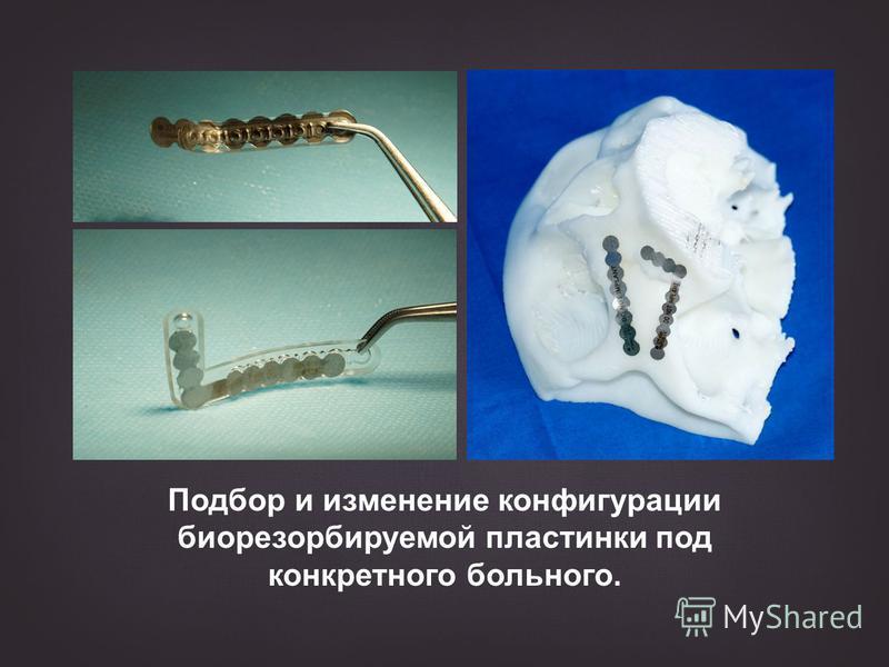 Подбор и изменение конфигурации биорезорбируемой пластинки под конкретного больного.