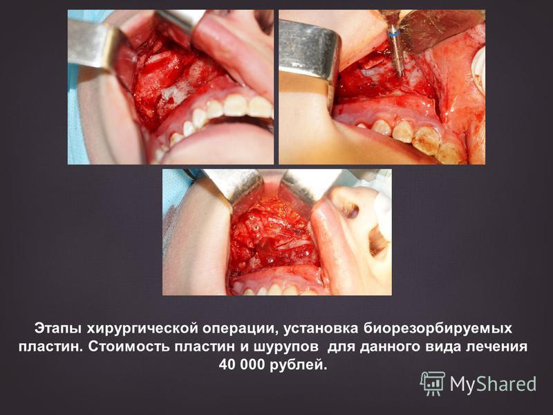 Этапы хирургической операции, установка биорезорбируемых пластин. Стоимость пластин и шурупов для данного вида лечения 40 000 рублей.