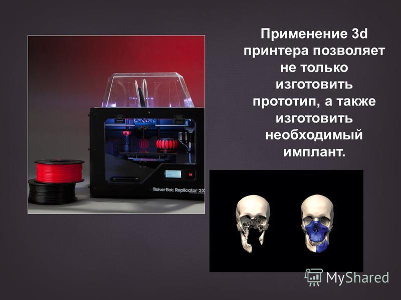 Применение 3d принтера позволяет не только изготовить прототип, а также изготовить необходимый имплант.