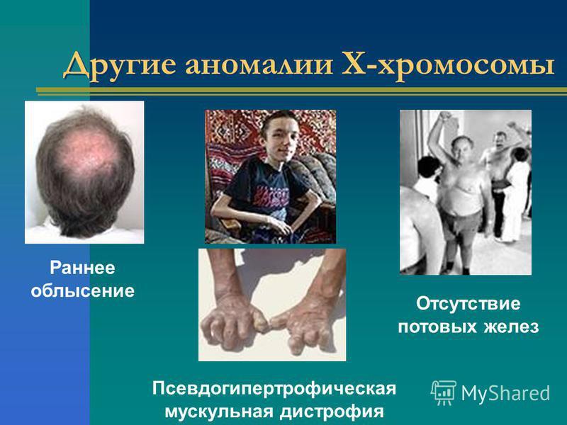 Другие аномалии Х-хромосомы Раннее облысение Псевдогипертрофическая мускульная дистрофия Отсутствие потовых желез