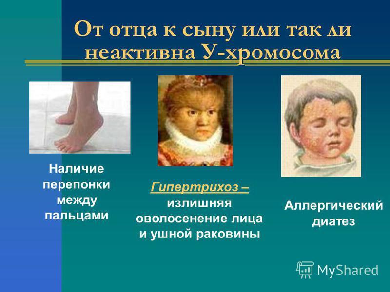 От отца к сыну или так ли неактивна У-хромосома Наличие перепонки между пальцами Гипертрихоз – излишняя оволосение лица и ушной раковины Аллергический диатез