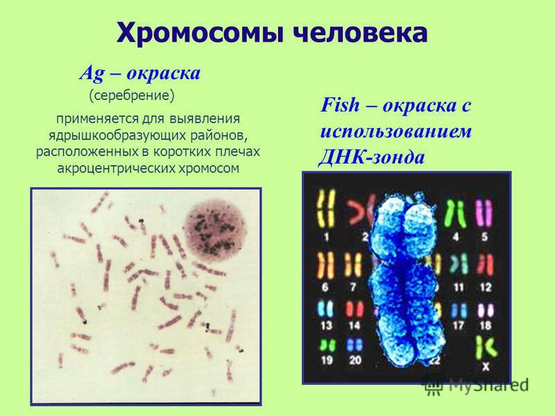 Хромосомы человека Ag – окраска Fish – окраска с использованием ДНК-зонда (серебрение) применяется для выявления ядрышко образующих районов, расположенных в коротких плечах акроцентрических хромосом