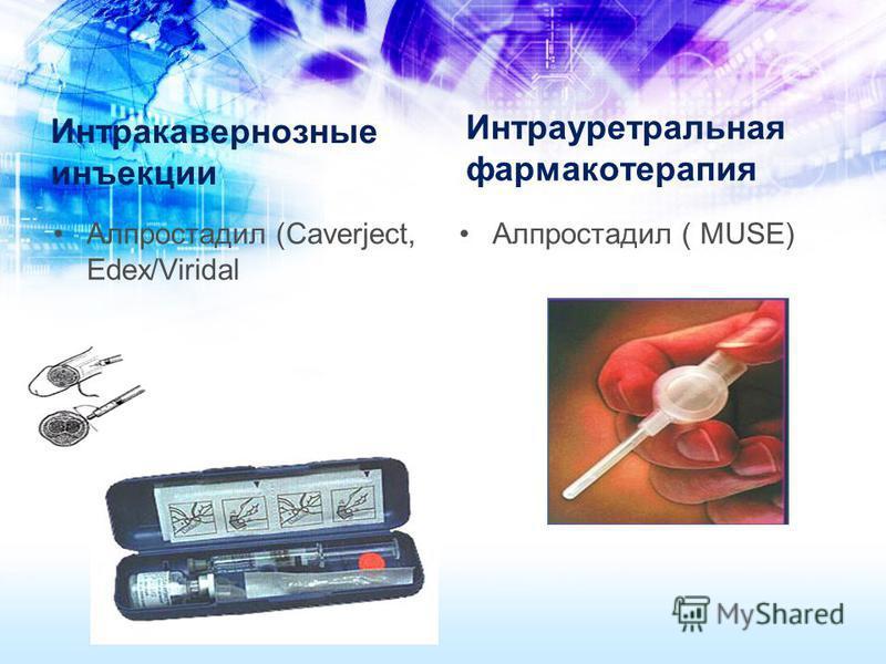 Интракавернозные инъекции Алпростадил (Caverject, Edex/Viridal Интрауретральная фармакотерапия Алпростадил ( MUSE)