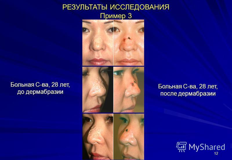 12 РЕЗУЛЬТАТЫ ИССЛЕДОВАНИЯ Пример 3 Больная С-ва, 28 лет, до дермабразии Больная С-ва, 28 лет, после дермабразии