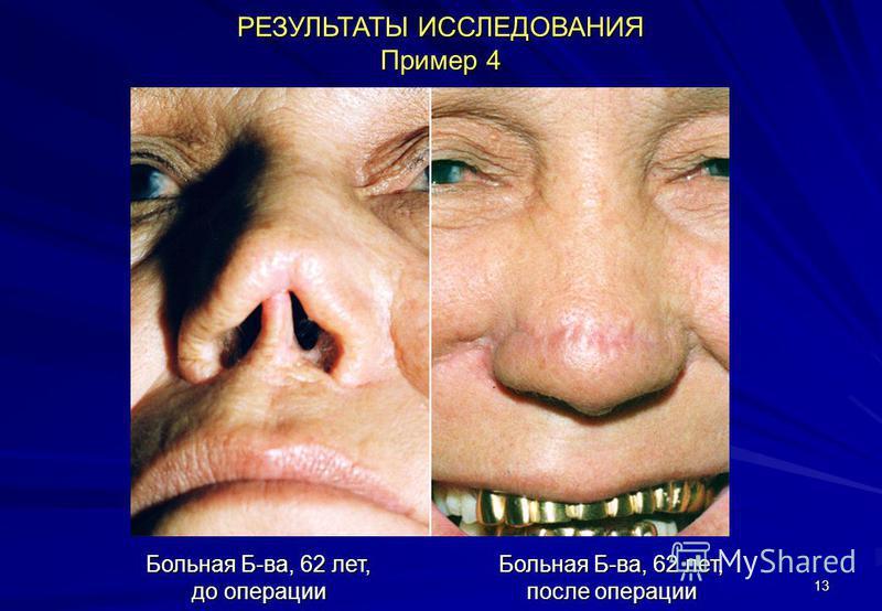 13 РЕЗУЛЬТАТЫ ИССЛЕДОВАНИЯ Пример 4 Больная Б-ва, 62 лет, до операции Больная Б-ва, 62 лет, после операции