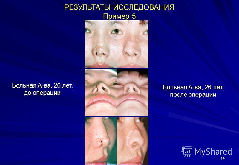 14 РЕЗУЛЬТАТЫ ИССЛЕДОВАНИЯ Пример 5 Больная А-ва, 26 лет, до операции Больная А-ва, 26 лет, после операции