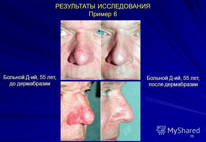 15 РЕЗУЛЬТАТЫ ИССЛЕДОВАНИЯ Пример 6 Больной Д-ий, 55 лет, до дермабразии Больной Д-ий, 55 лет, после дермабразии
