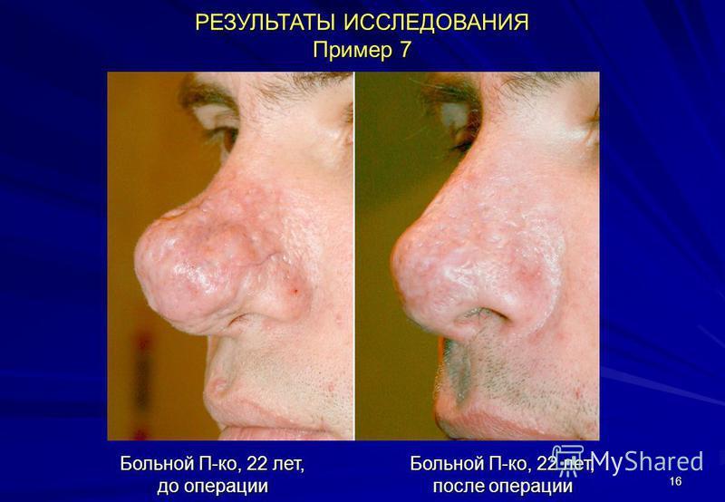 16 РЕЗУЛЬТАТЫ ИССЛЕДОВАНИЯ Пример 7 Больной П-ко, 22 лет, до операции Больной П-ко, 22 лет, после операции