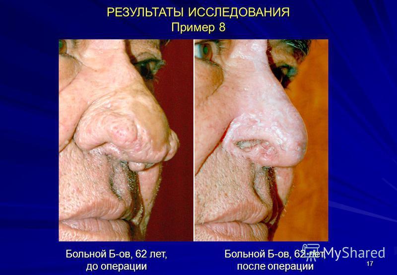 17 РЕЗУЛЬТАТЫ ИССЛЕДОВАНИЯ Пример 8 Больной Б-ов, 62 лет, до операции Больной Б-ов, 62 лет, после операции