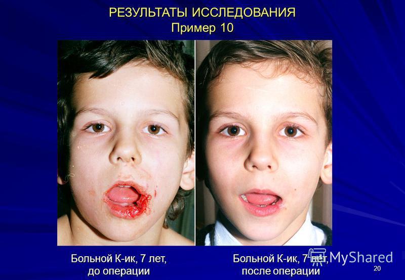 20 РЕЗУЛЬТАТЫ ИССЛЕДОВАНИЯ Пример 10 Больной К-ик, 7 лет, до операции Больной К-ик, 7 лет, после операции