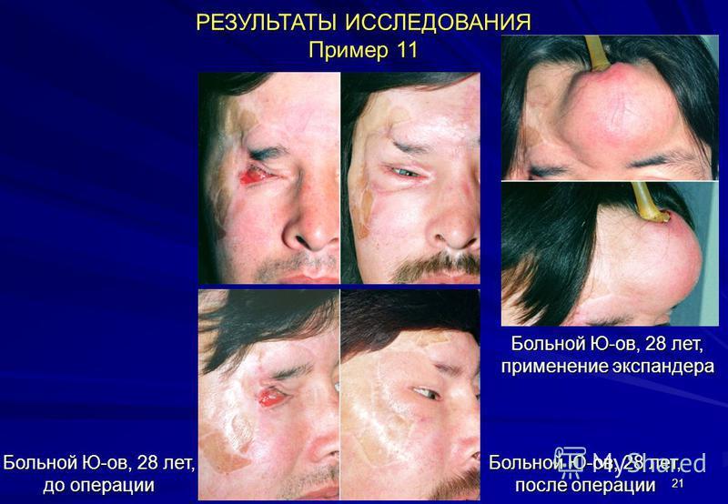 21 РЕЗУЛЬТАТЫ ИССЛЕДОВАНИЯ Пример 11 Больной Ю-ов, 28 лет, до операции Больной Ю-ов, 28 лет, после операции Больной Ю-ов, 28 лет, применение экспандера
