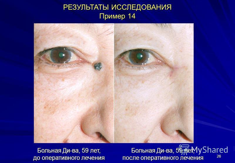 26 РЕЗУЛЬТАТЫ ИССЛЕДОВАНИЯ Пример 14 Больная Ди-ва, 59 лет, до оперативного лечения Больная Ди-ва, 59 лет, после оперативного лечения