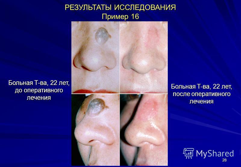 28 РЕЗУЛЬТАТЫ ИССЛЕДОВАНИЯ Пример 16 Больная Т-ва, 22 лет, до оперативного лечения Больная Т-ва, 22 лет, после оперативного лечения