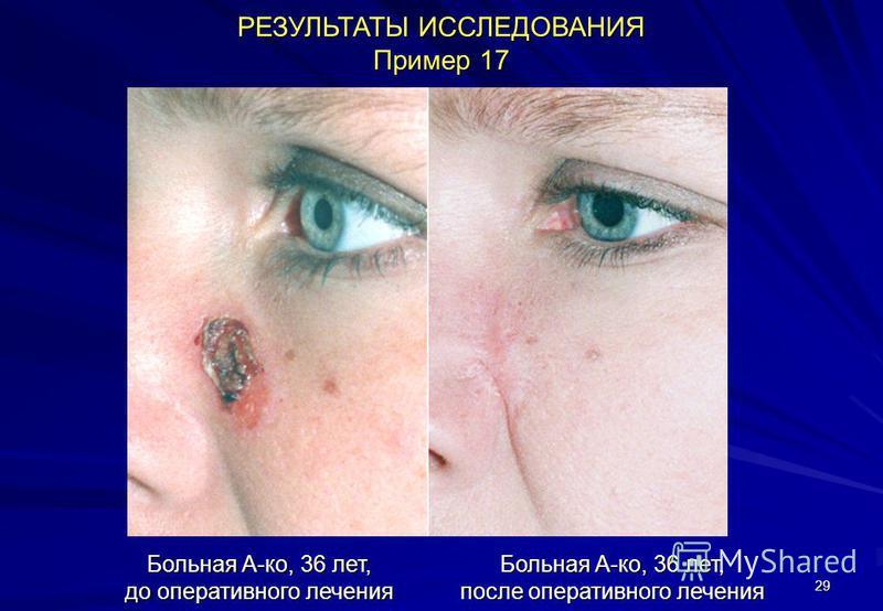 29 РЕЗУЛЬТАТЫ ИССЛЕДОВАНИЯ Пример 17 Больная А-ко, 36 лет, до оперативного лечения Больная А-ко, 36 лет, после оперативного лечения