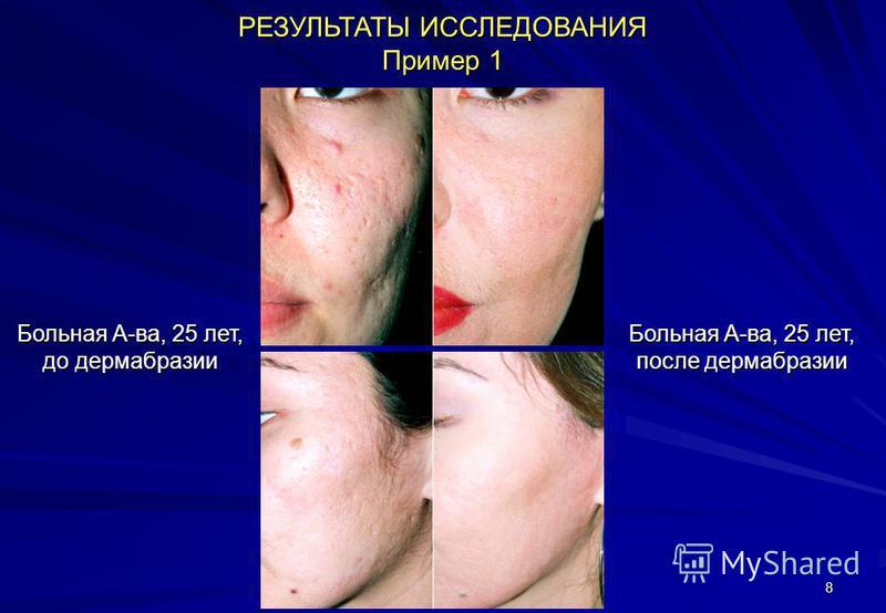 8 РЕЗУЛЬТАТЫ ИССЛЕДОВАНИЯ Пример 1 Больная А-ва, 25 лет, до дермабразии Больная А-ва, 25 лет, после дермабразии