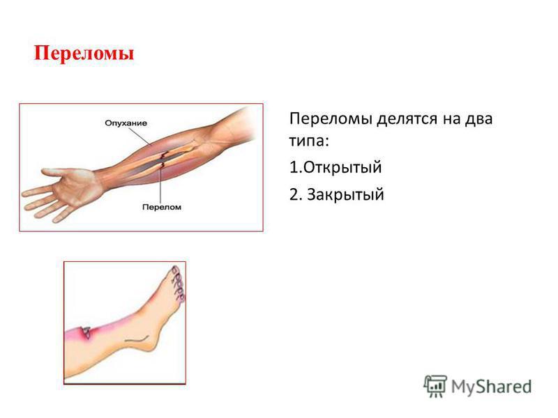 Переломы Переломы делятся на два типа: 1. Открытый 2. Закрытый