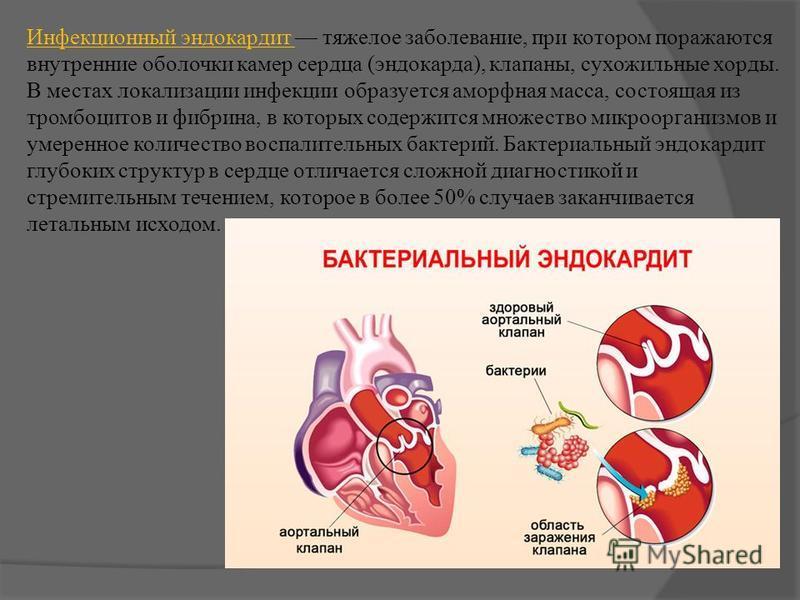Инфекционный эндокардит тяжелое заболевание, при котором поражаются внутренние оболочки камер сердца (эндокарда), клапаны, сухожильные хорды. В местах локализации инфекции образуется аморфная масса, состоящая из тромбоцитов и фибрина, в которых содер
