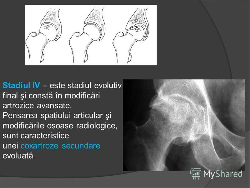 semne radiologice ale bolii articulare spondilita axiala