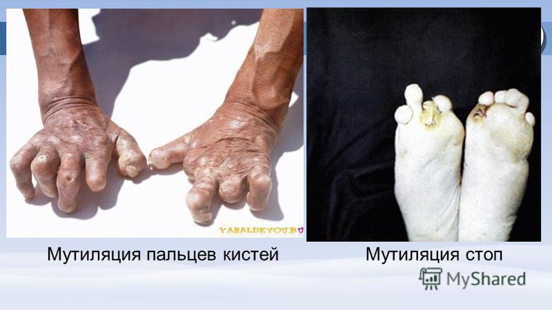 Мутиляция пальцев кистей Мутиляция стоп