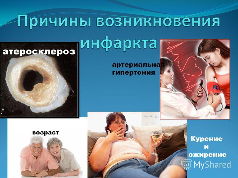 атеросклероз артериальная гипертония возраст Курение и ожирение