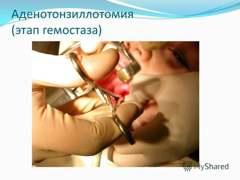 Аденотонзиллотомия (этап гемостаза)