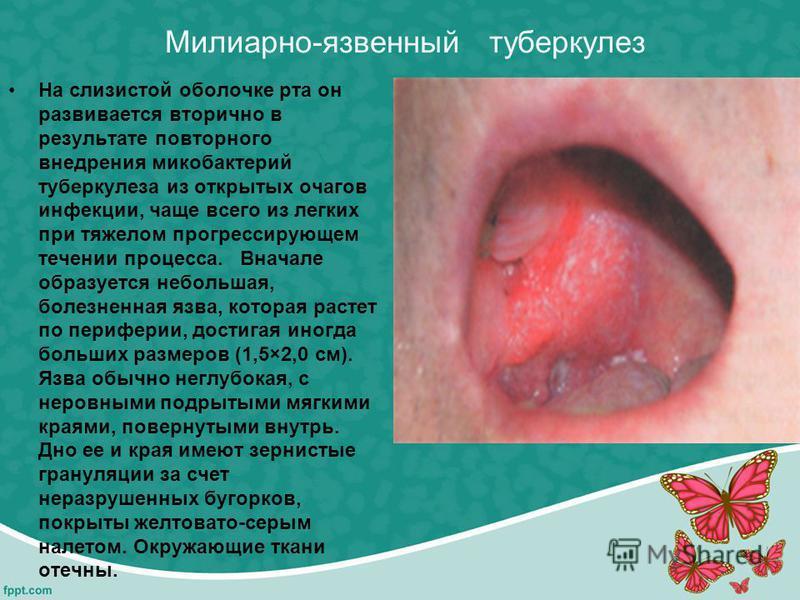 Милиарно-язвенный туберкулез На слизистой оболочке рта он развивается вторично в результате повторного внедрения микобактерий туберкулеза из открытых очагов инфекции, чаще всего из легких при тяжелом прогрессирующем течении процесса. Вначале образует