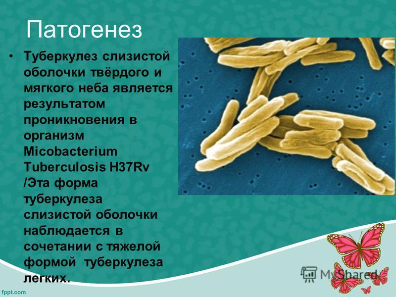Патогенез Туберкулез слизистой оболочки твёрдого и мягкого неба является результатом проникновения в организм Micobacterium Tuberculosis H37Rv /Эта форма туберкулеза слизистой оболочки наблюдается в сочетании с тяжелой формой туберкулеза легких.