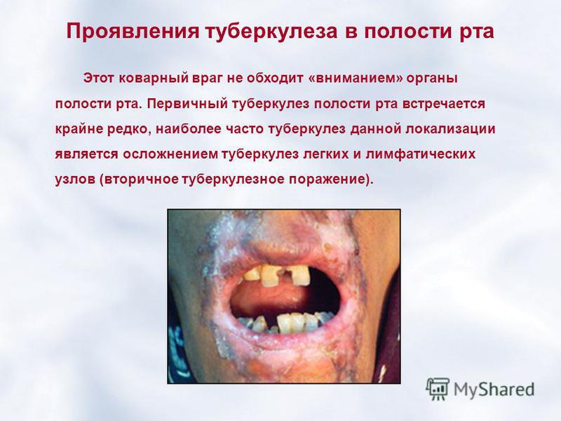 Проявления туберкулеза в полости рта Этот коварный враг не обходит «вниманием» органы полости рта. Первичный туберкулез полости рта встречается крайне редко, наиболее часто туберкулез данной локализации является осложнением туберкулез легких и лимфат