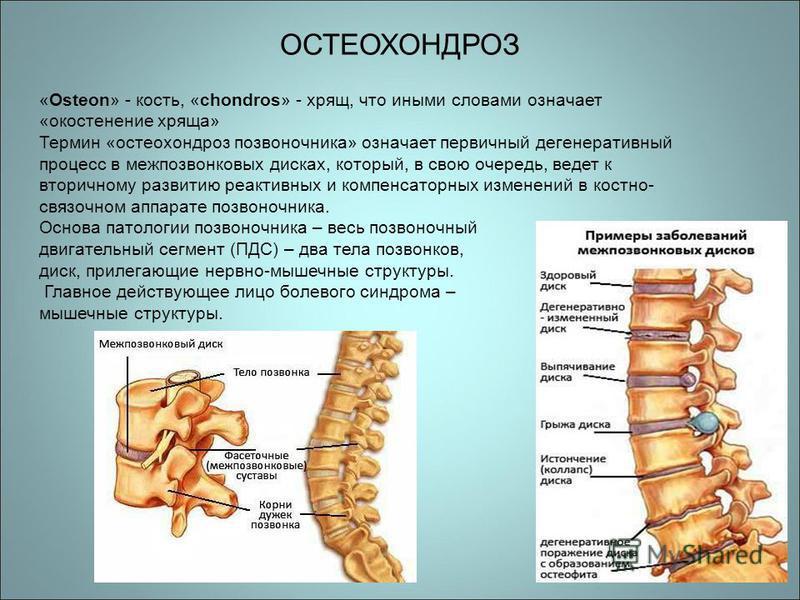 ОСТЕОХОНДРОЗ «Osteon» - кость, «chondros» - хрящ, что иными словами означает «окостенение хряща» Термин «остеохондроз позвоночника» означает первичный дегенеративный процесс в межпозвонковых дисках, который, в свою очередь, ведет к вторичному развити